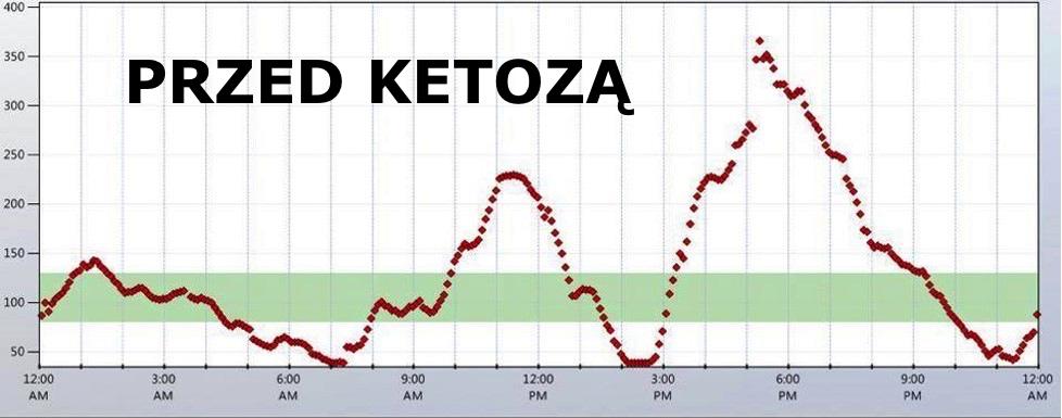 insulina przed ketozą