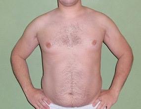 tkanka tłuszczowa 30-34%